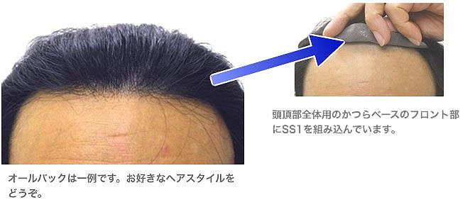 オールバックは一例です。お好きなヘアスタイルをどうぞ。頭頂部全体用のかつらベースのフロント部へSS1を組み込んでいます。