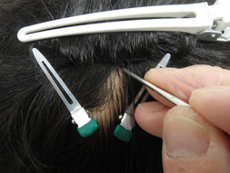 かつらベースの外周を自毛でポイント式に十数カ所編込んで(結んで)留めていく方法や、予め、頭部に自毛で編込み土台を作り、ネットベースの外周をその土台に糸でくくり付けていく(かがっていく)方法などです。この装着方法は極薄ベースには不向きですので標準的な厚さのネットベースを用いての装着方法です。